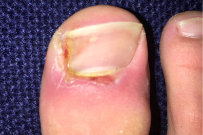 what causes in growing toenails